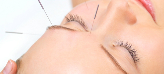 what-is-acupuncture